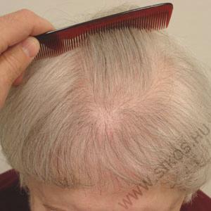 hajátültetés, hajbeültetés női diffúz hajhiány esetén. Műtét után