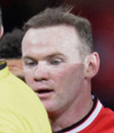 Rooney hajbeültetése