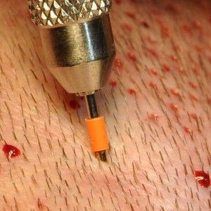 FUE  graftvétel mikrokörkéssel