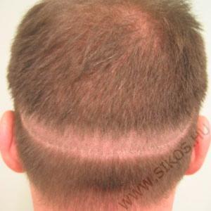 Donor heg hajátültetés után 5 évvel