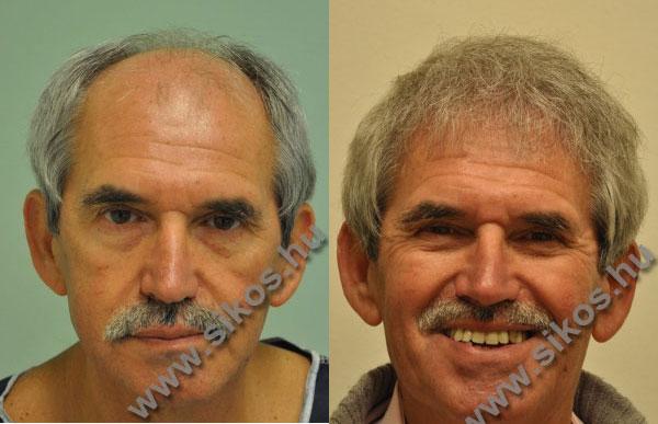 Hajbeültetés előtt és után