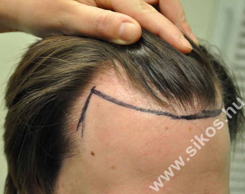 fue hajbeültetés hajvonal képzés