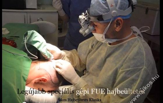 Hajbeültetés hajátültetés video