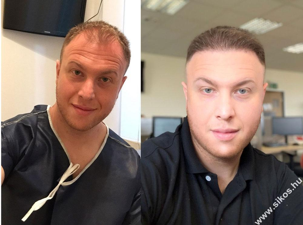 Sikos dr a legjobb 25 hajbeültetés sebész között