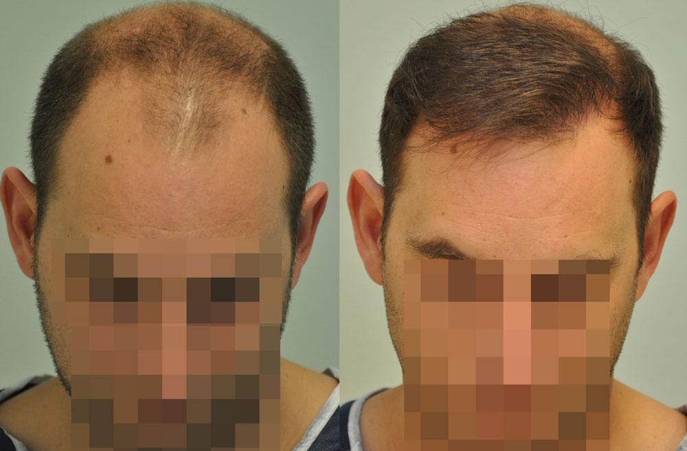 FUE hajbeültetés 2531 graft 5555 hajszál