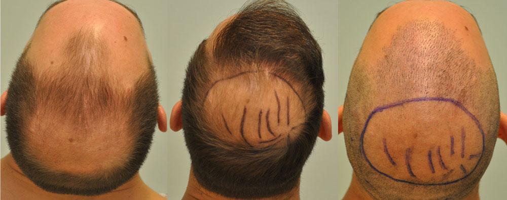 FUE hajbeültetés 2531 graft 5555 hajszál 2.műtét előtt