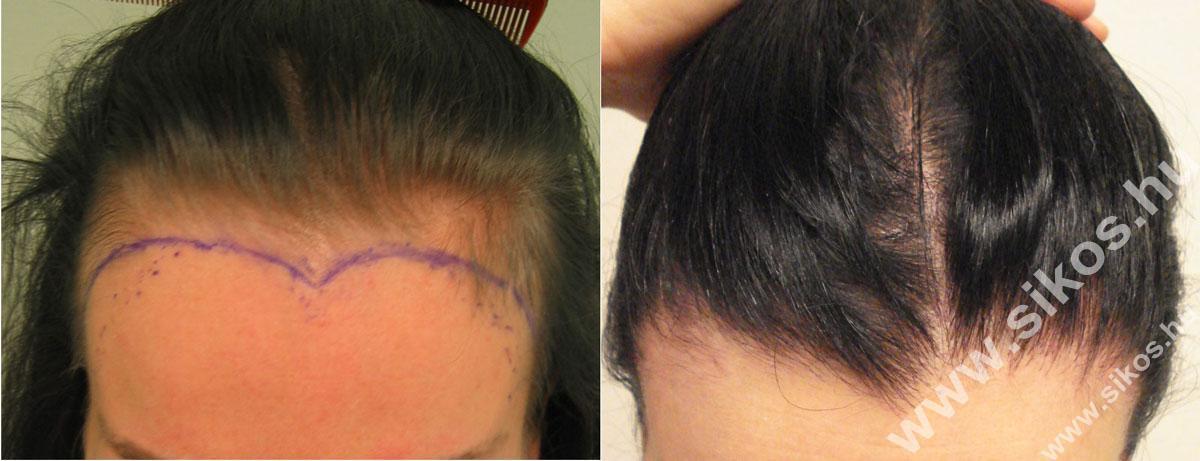 Női hajvonal kiegészítés, magas hajvonal pótlása hajbeültetésse
