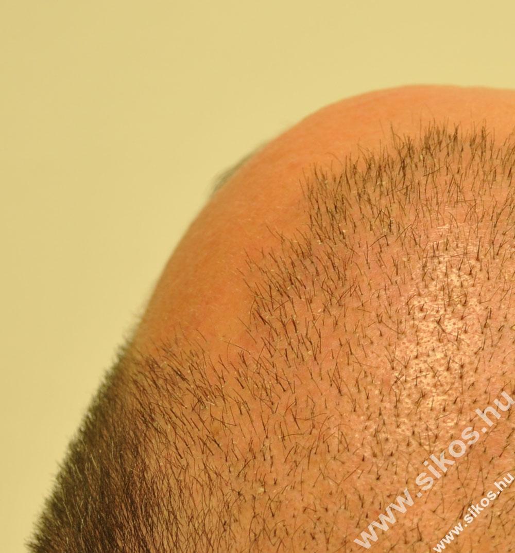 Hajbeültetés után két héttel és kinőtt hajjal