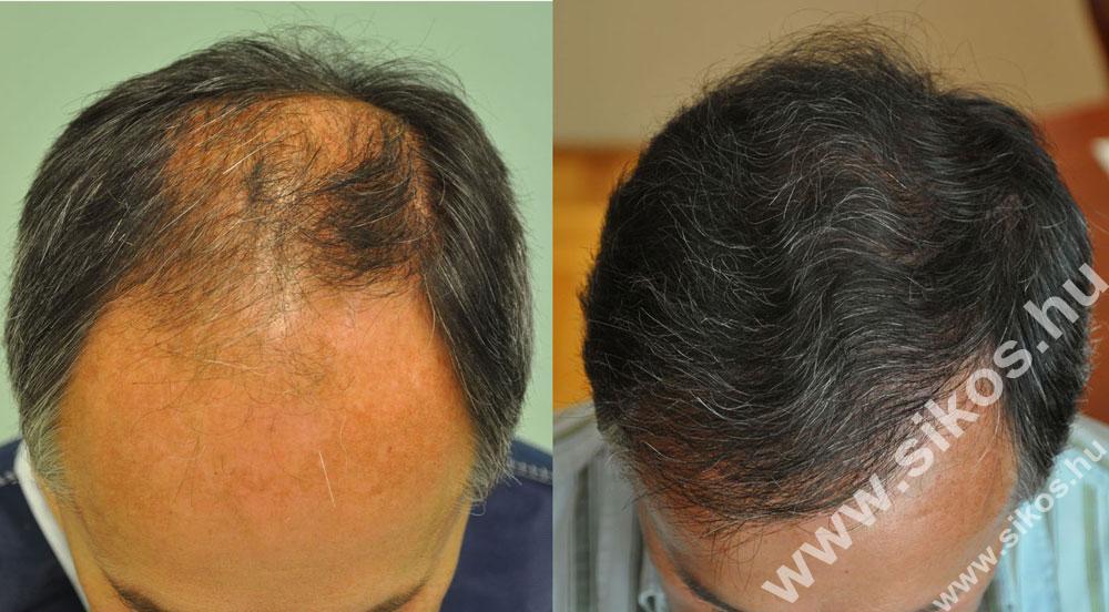FUE hajbeültetés eredménye 5074 graft
