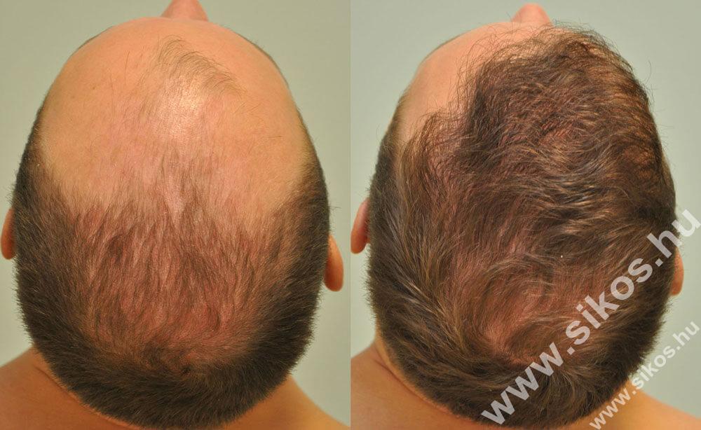FUE hajbeültetés eredménye 3002 graft FUE Hair transplant 3002 grafts Haartransplantation mit 3002 graften