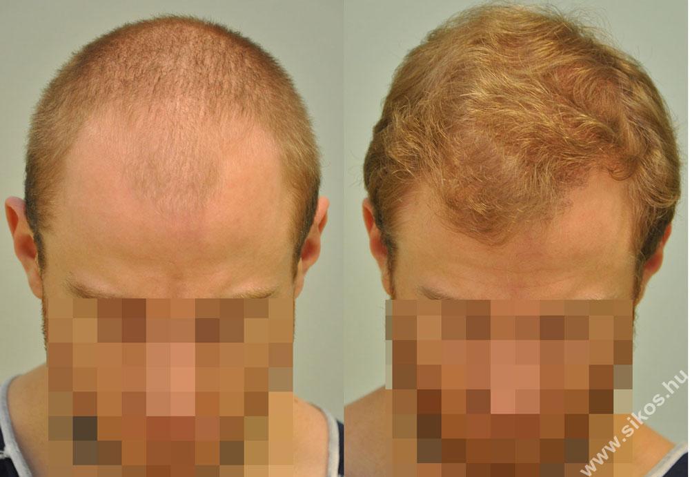 FUE Haartransplantation 2579 graften