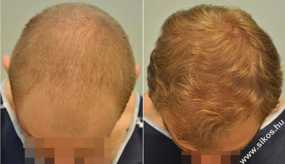 FUE hair transplantation, hair restoration, follicular unit transplantation