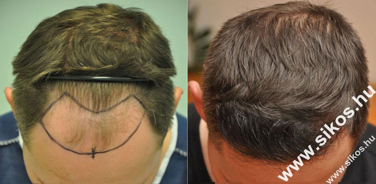 FUE Hajbeültetés, FUE hajátültetés 2171 grafttal Norwood III fokozatú hajhiány esetében Norwood III class baldness, before and after transplanting 2171 grafts with FUE harvesting technique