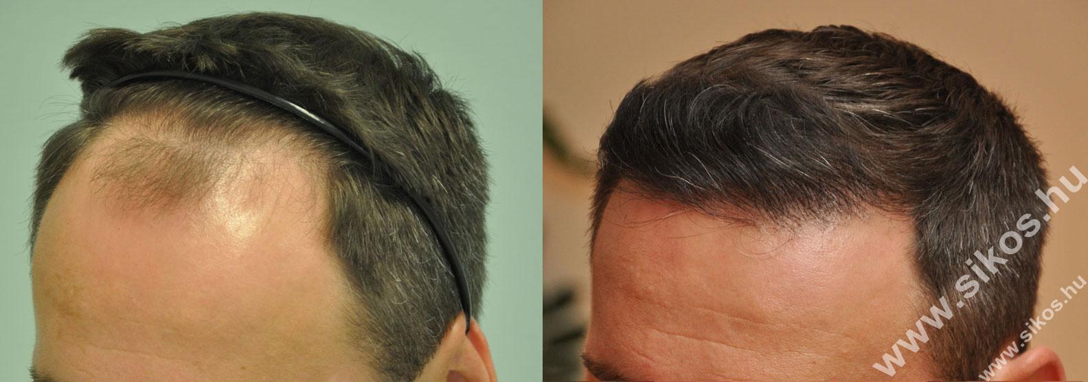 FUE Hajbeültetés, FUE hajátültetés 2171 grafttal Norwood III fokozatú hajhiány esetében Norwood III class baldness, before and after transplanting 2171 grafts with FUE harvesting technique