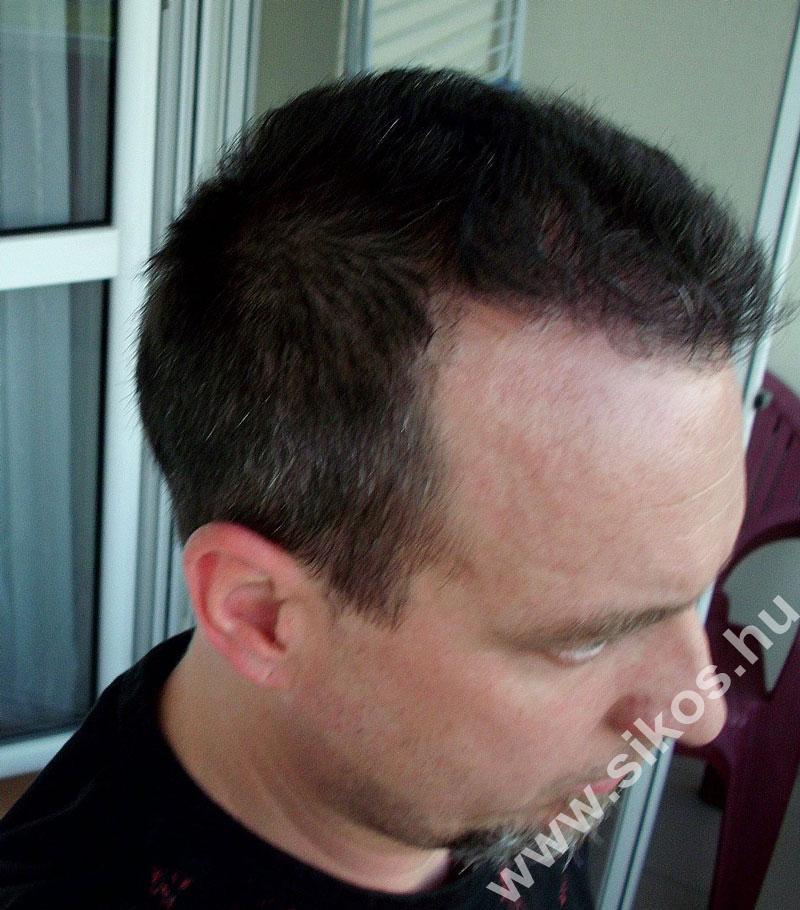 2. FUE hajbeültetés után 7 hónappal