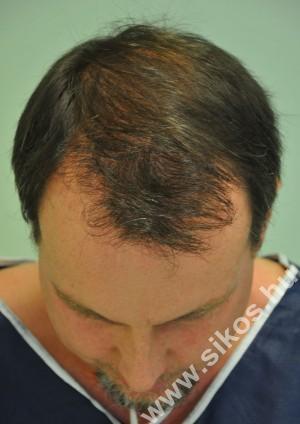 Gábor hajbeültetés után