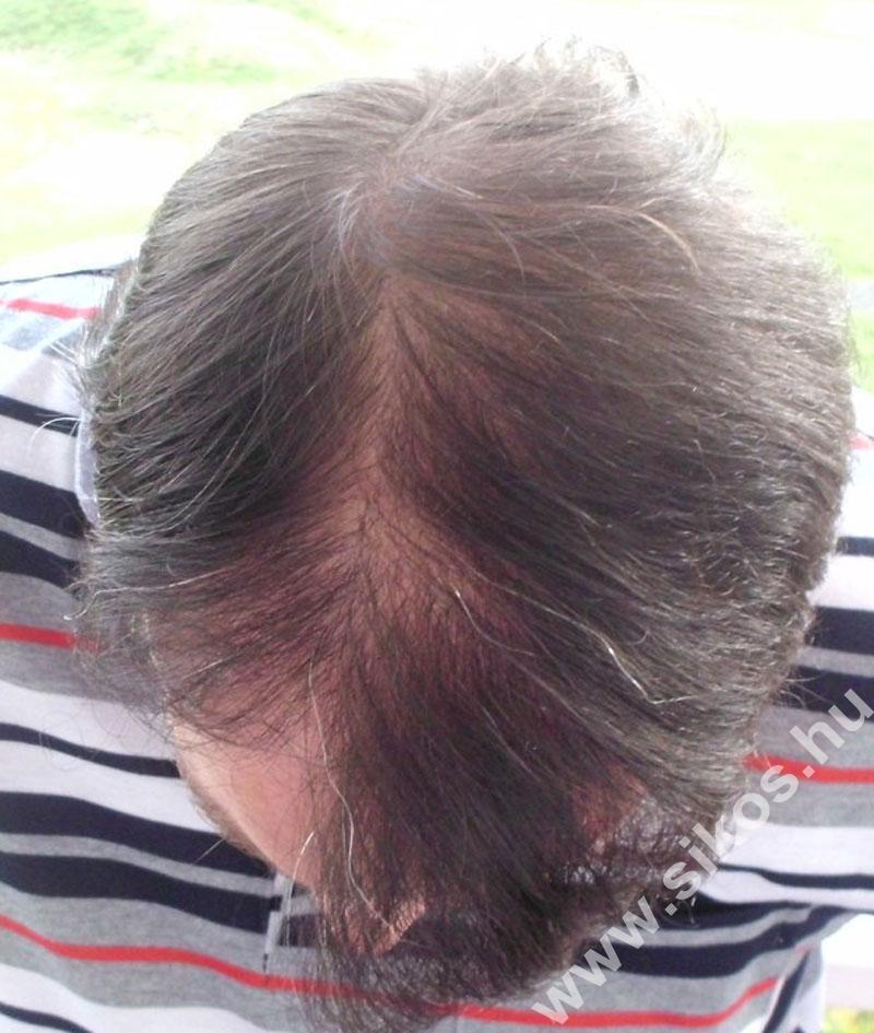 2. FUE hajbeültetés után 10 hónappal