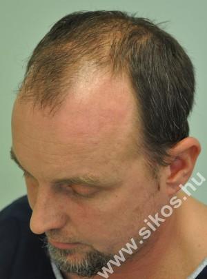 Hajbeültetés hajátültetésHajbeültetés hajátültetés Hajbeültetés hajátültetésHajbeültetés hajátültetés Hajbeültetés hajátültetésHajbeültetés hajátültetés