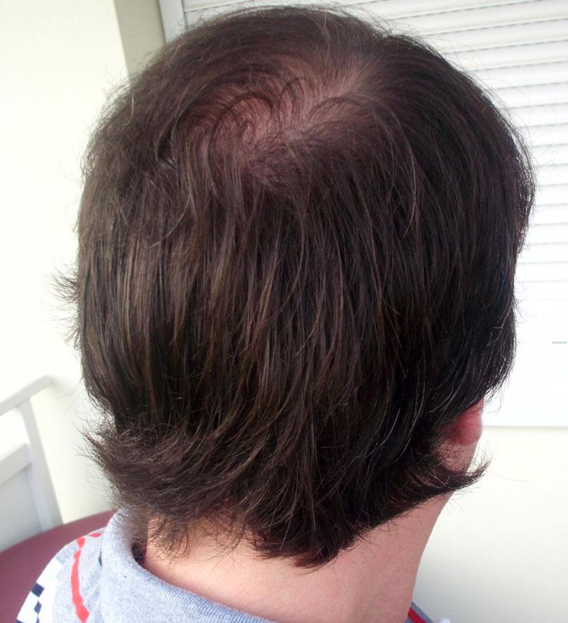 Adóhely 2. FUE hajbeültetés után 10 hónappal