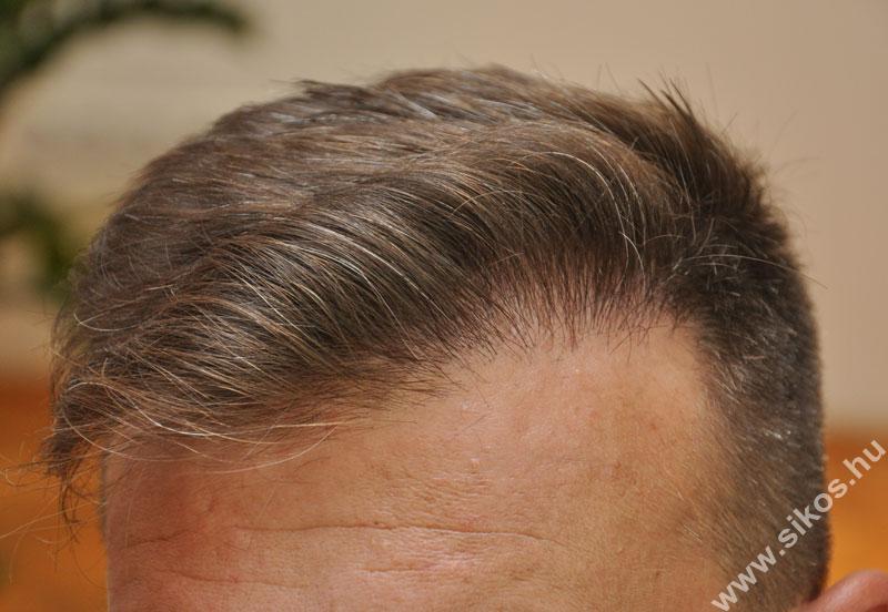 hajbeültetés természetes eredménnyel