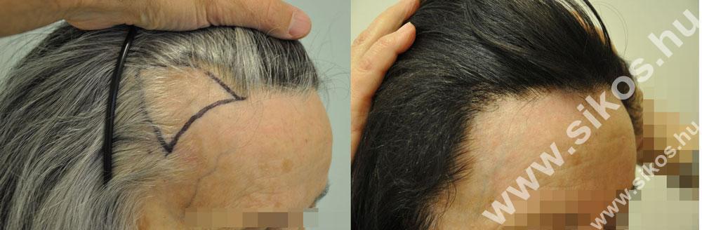 Halántéktáji háromszögek feltöltése, hajvonal kiegészítés  FUE hajbeültetéssel hölgy páciensnél.