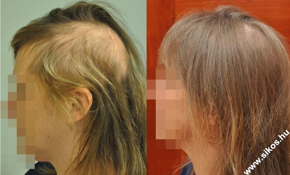 Kedves hölgy páciensünknél koponyaműtét utáni besugárzás következtében kialakult hajhiány miatt végeztünk hajbeültetés, kombinált FUT (csíkvételi) +FUE (egyenkénti kivételi) technikával .Összesen 2716 graft, 4871 hajszál került átültetésre.  Hajbeültetés után 1 évvel látható a kiváló eredmény, mely nagy örömmel tölti el páciensünket.