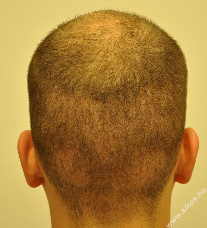 Adóhely 2 héttel hajbeültetés után