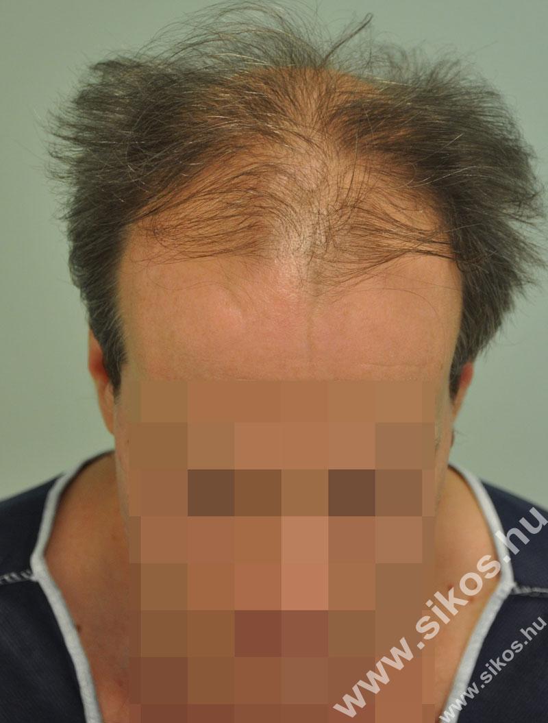 Hajbeültetés, hajátültetés FUE