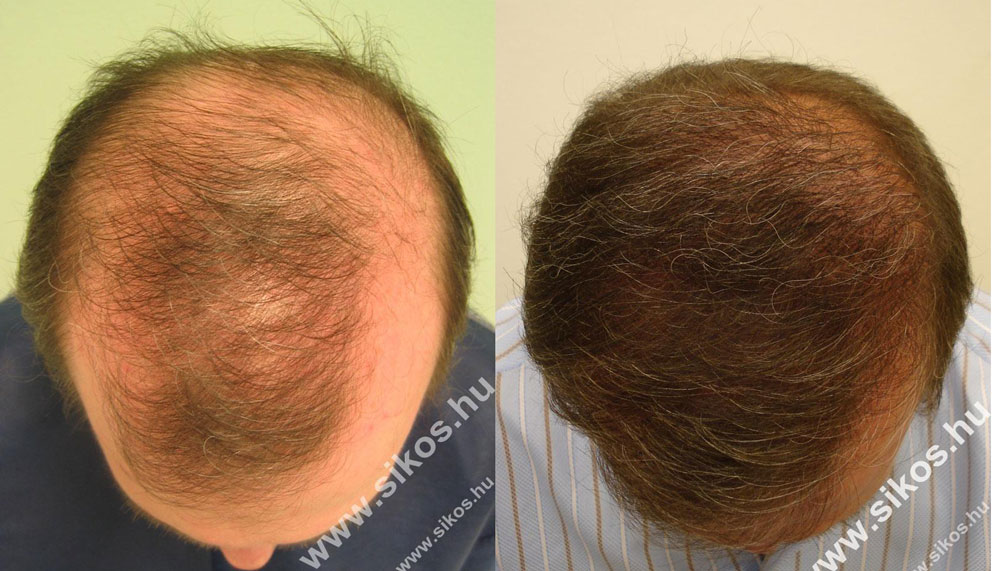Die Maske gegen den Haarausfall für die sensorische Haut