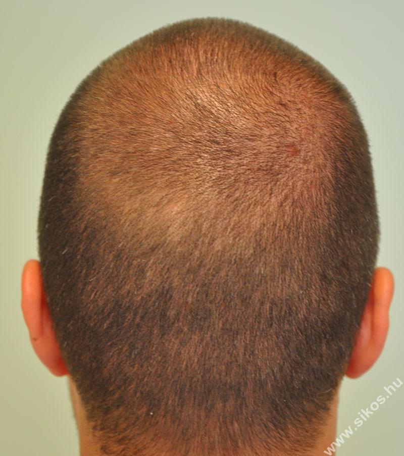 hajbeültetés adóhely műtét előtt