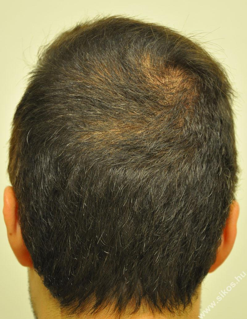 hajbeültetés adóhely műtét után