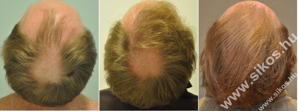 FUE hajbeültetés előtt, 1. műtét után és 2. műtét után