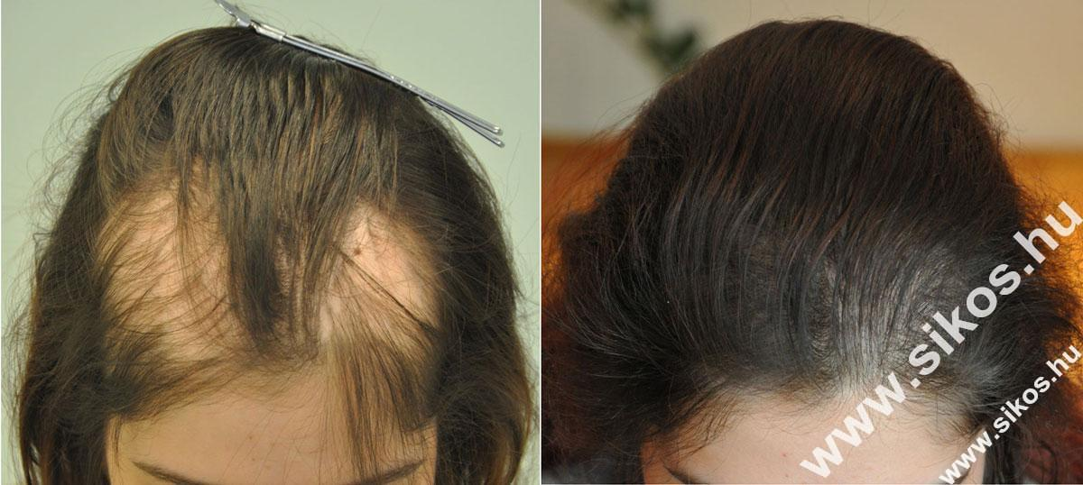 hair transplant for female alopecia
