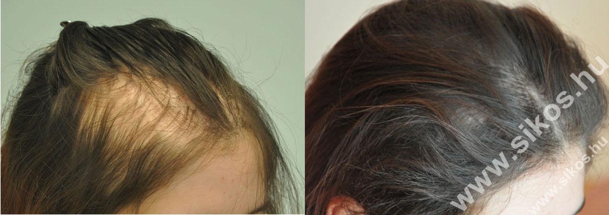 női hajbeültetés eredményesen