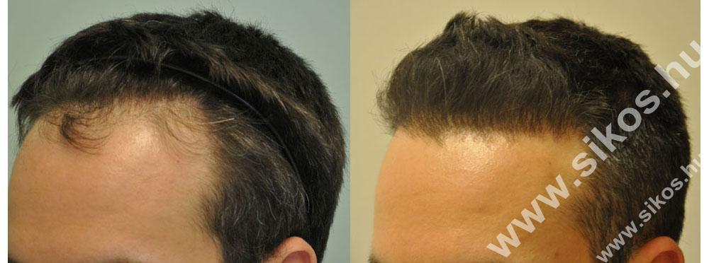 Hajbeültetés hajátültetés előtt után
