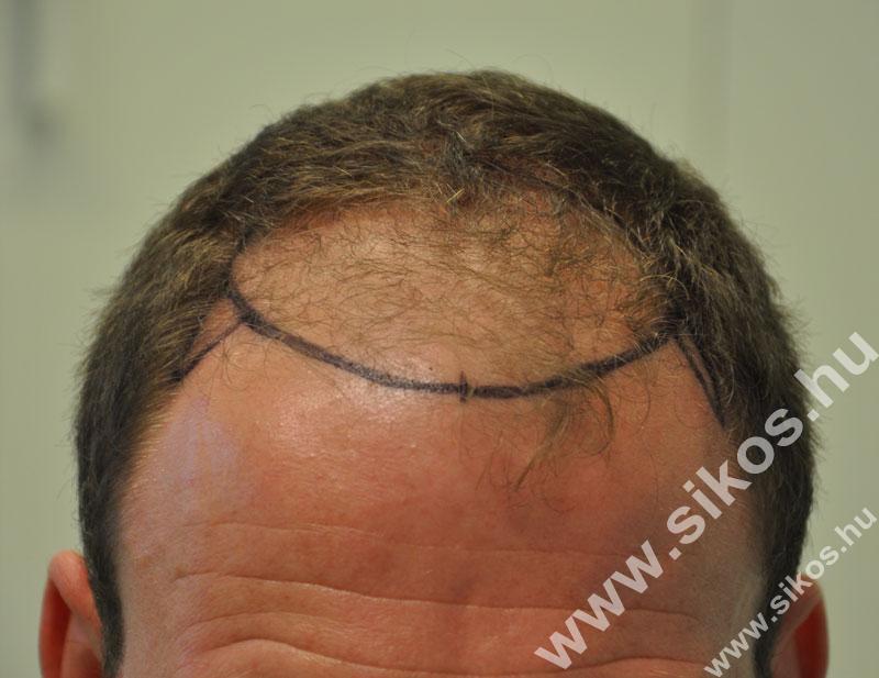 Hajvonal, elülső hajzóna jelölése az egyenetlen megtöretésekkel