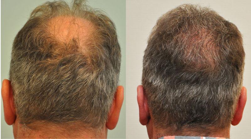 Adóhely előtte Első FUE hajbeültetés 2956 graft, 6140 hajszál, második FUE hajbeültetés 2894 graft, 5768hajszál. Összesen 5850 graft, 11908 hajszál került beültetésre.