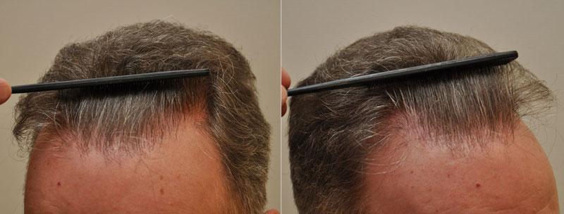 Első FUE hajbeültetés 2956 graft, 6140 hajszál, második FUE hajbeültetés 2894 graft, 5768hajszál. Összesen 5850 graft, 11908 hajszál került beültetésre.