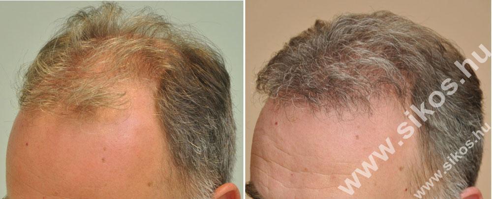 FUE hajbeültetés 2945 grafttal