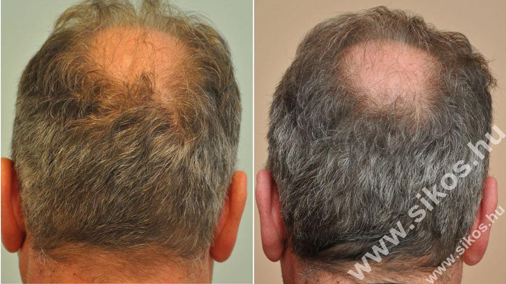 FUE hajbeültetés 2945 grafttal adóhely műtét előtt