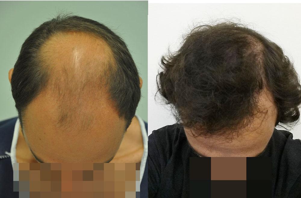 FUE hajbeültetés két műtét 4901 graft 9780 hajszál
