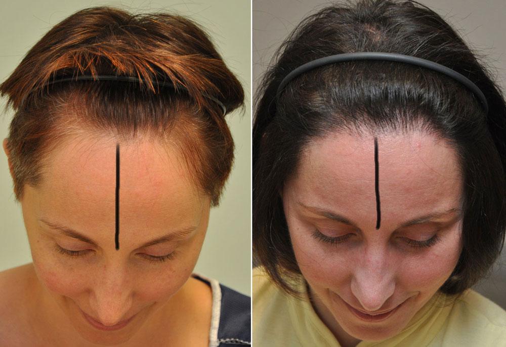 Női hajvonal előrehozása FUE hajbeültetés 2437graft 4706 hajszál