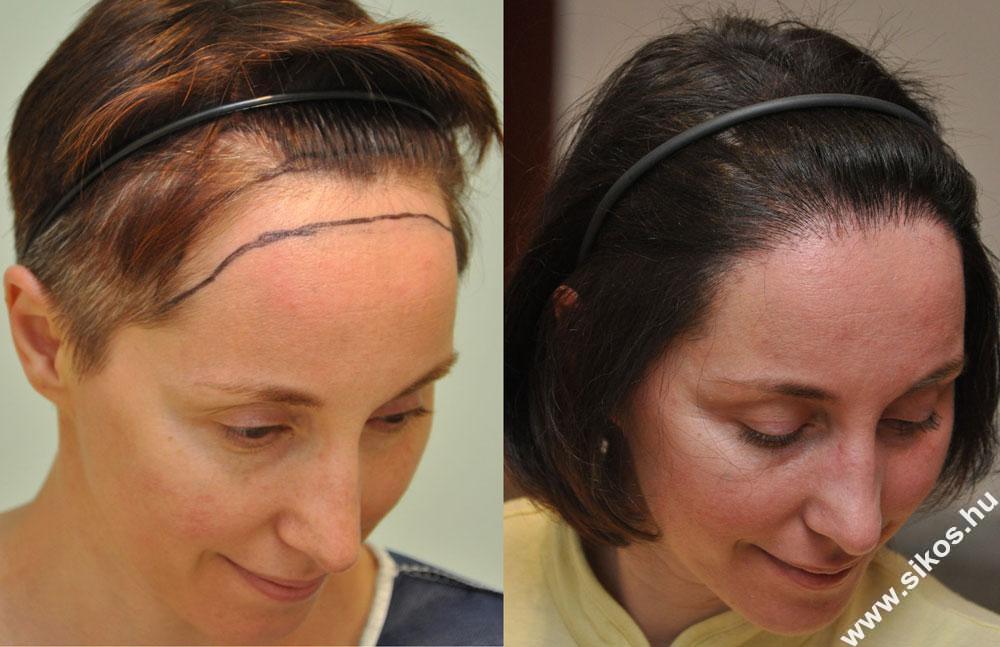 női hajbeültetés FUE technika