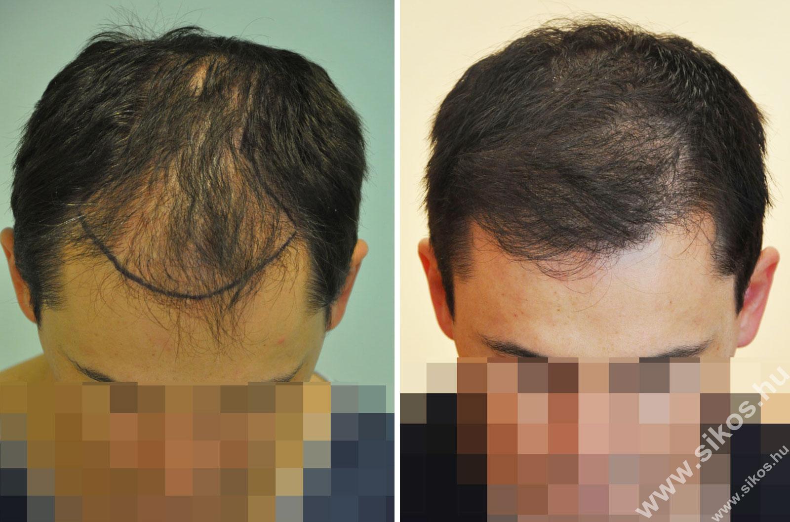 FUE hajbeültetés 2512 grafttal