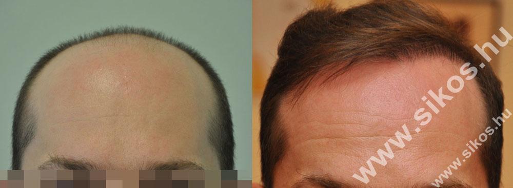 Fue hajbeültetés természetes és igen hatásos eredménye
