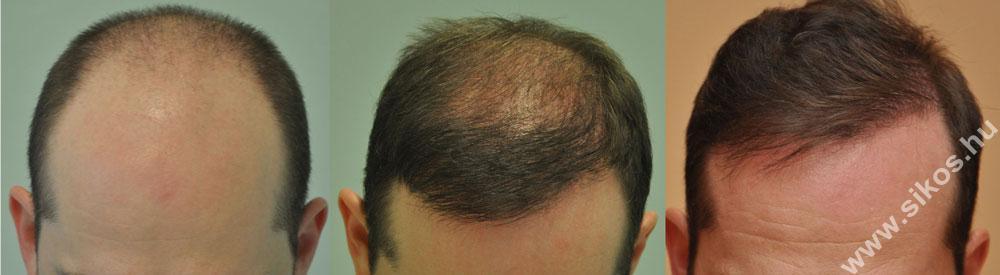 FUE hajbeültetés 1. műtét után és 2 műtét után