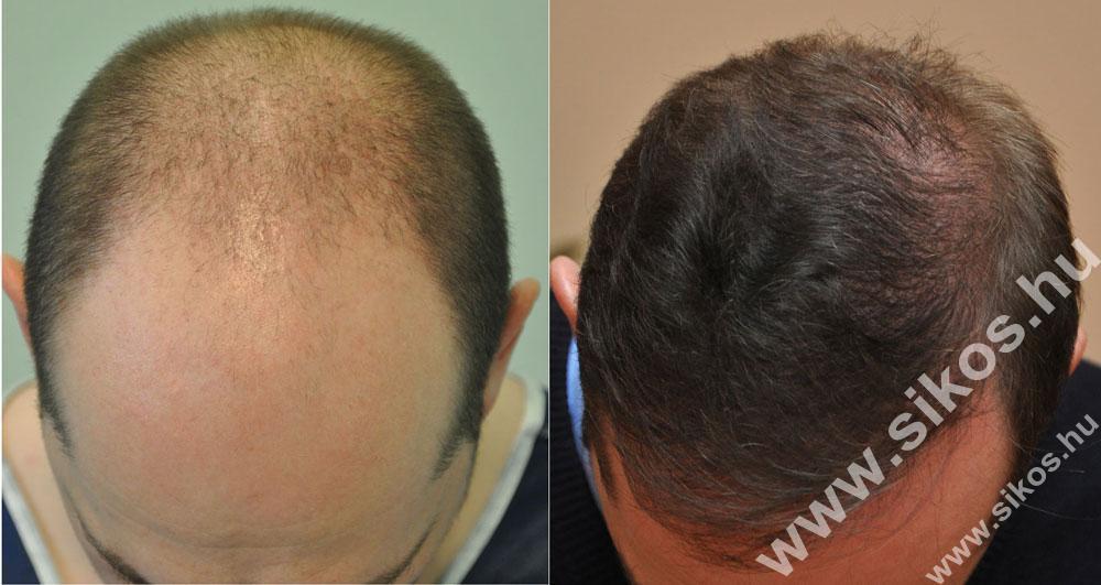 FUE hajbeültetés  2. műtét után