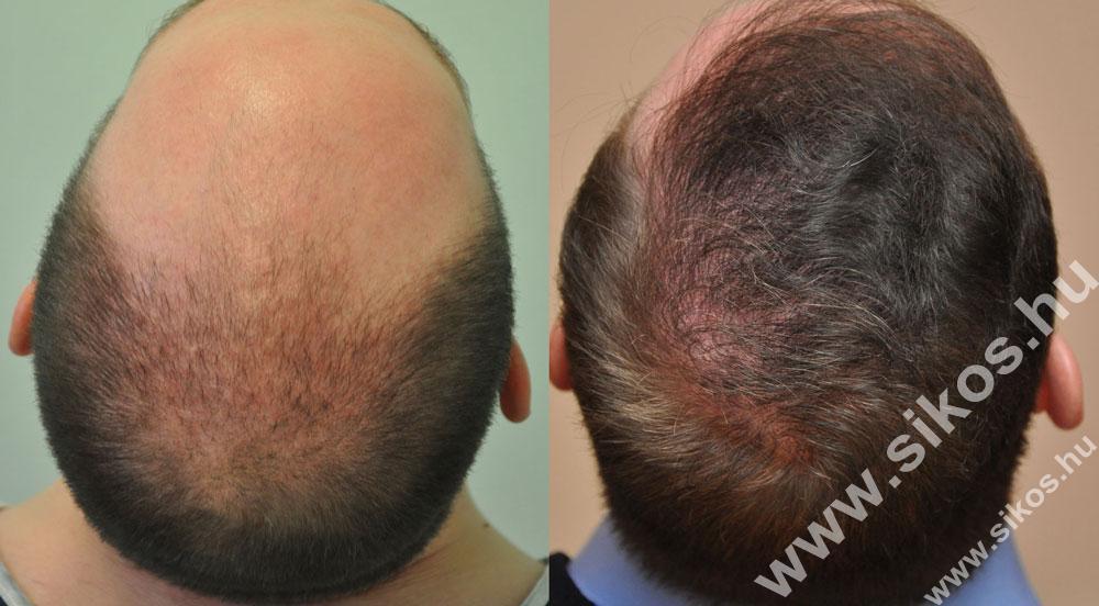 FUE hajbeültetés eredménye 2. műtét után