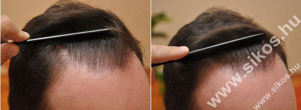 Természetes hajvonal 2 hajbeültetés után