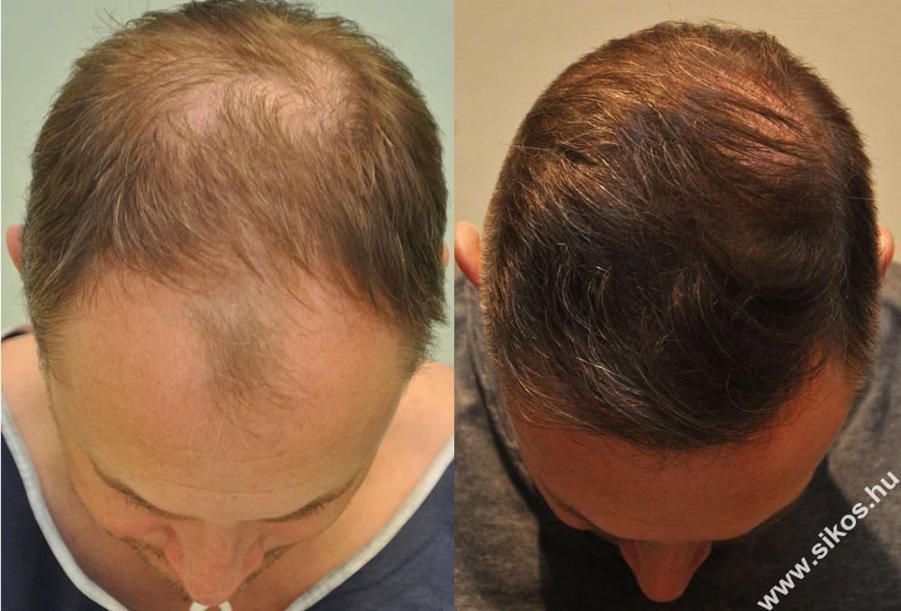 FUE hajbeültetés eredménye